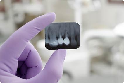 endodoncja_2